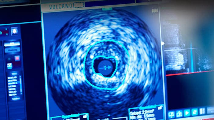 Intravascular Ultrasound (IVUS)