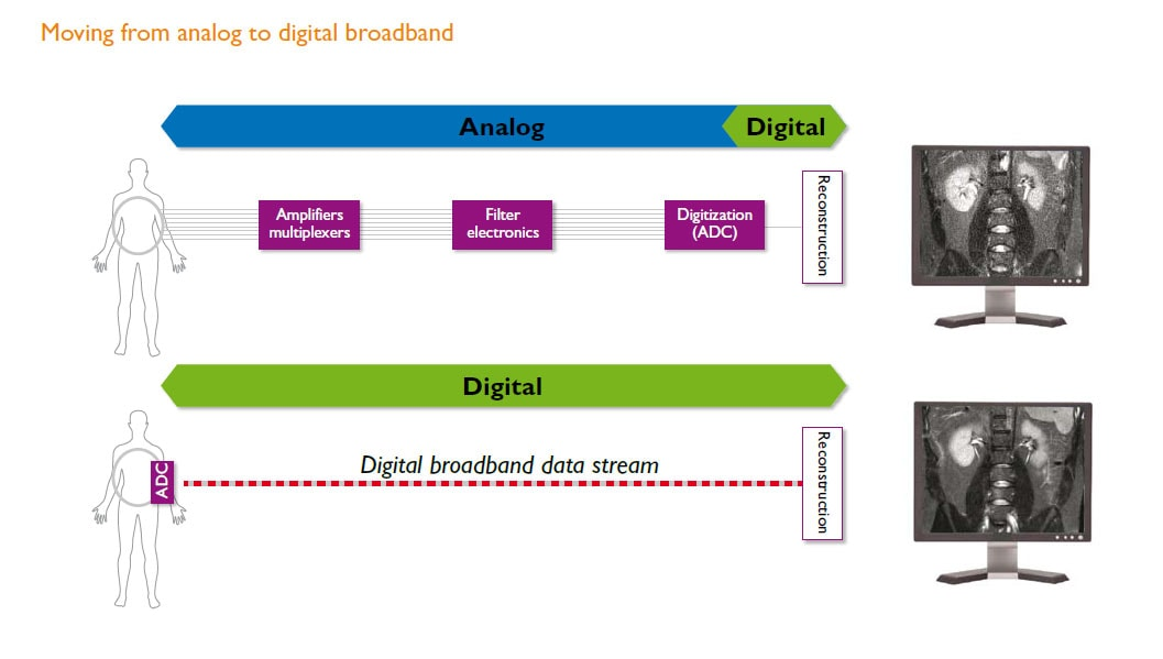 dstream moving from analog to digital broadband