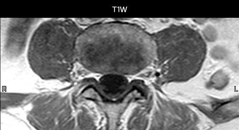 mri in ed back pain tra