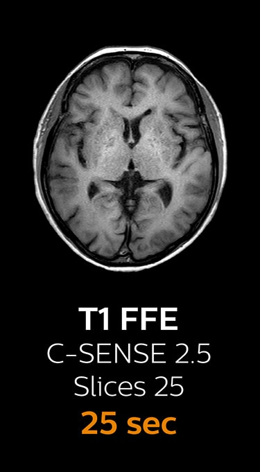 T1 FFE magnetic resonance