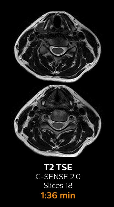 T2 TSE ax magnetic resonance imaging