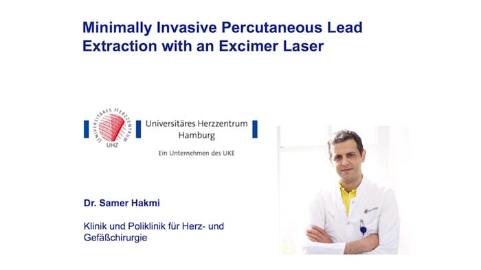 Case review: Minimally invasive percutaneous lead extraction with an excimer laser video
